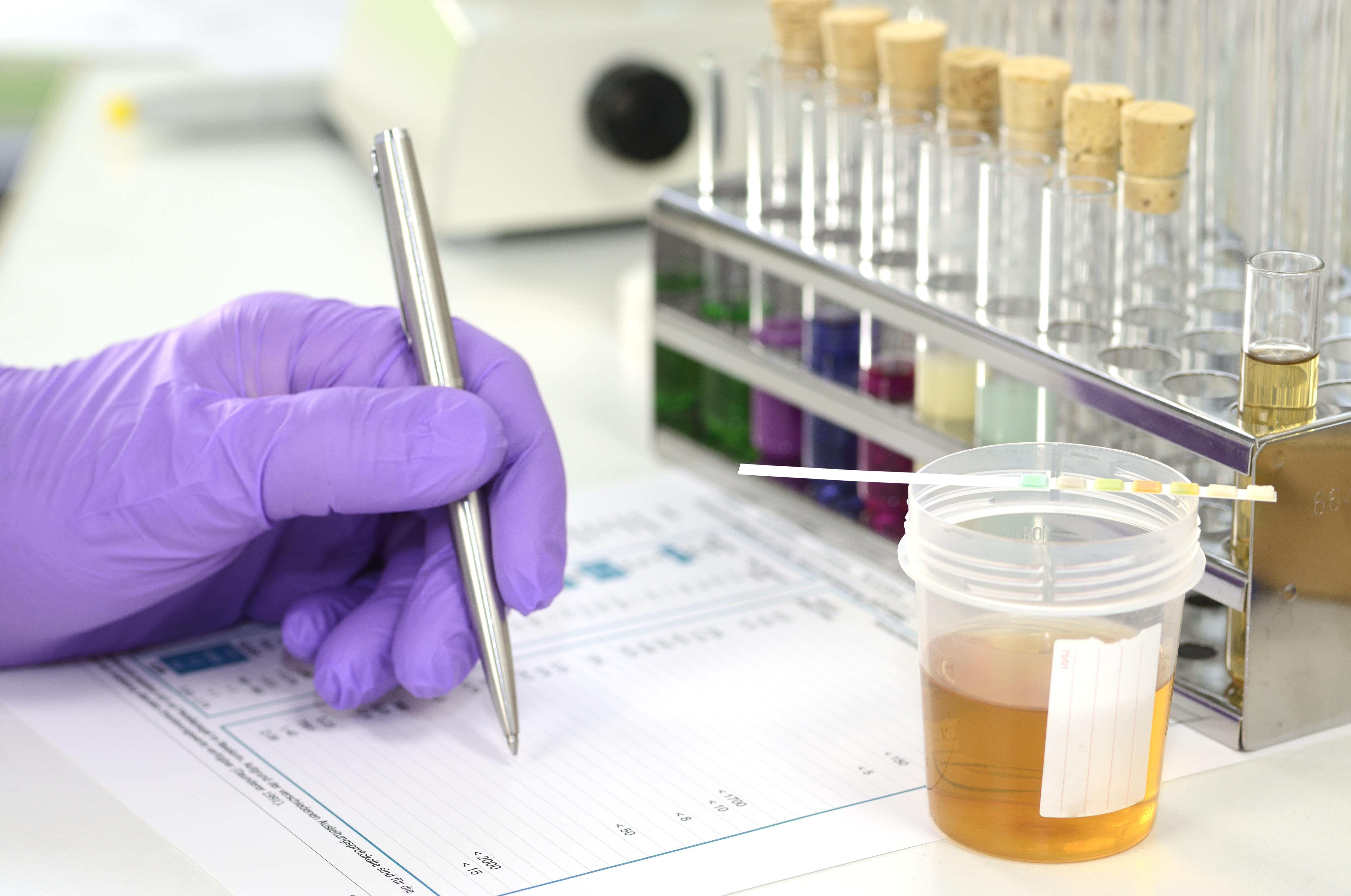 random drug testing, drug test, drug testing, drug screening